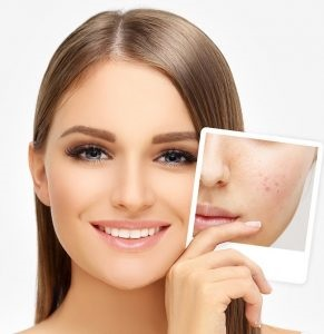 10 Ways to Get Rid of Acne Scars Safely,