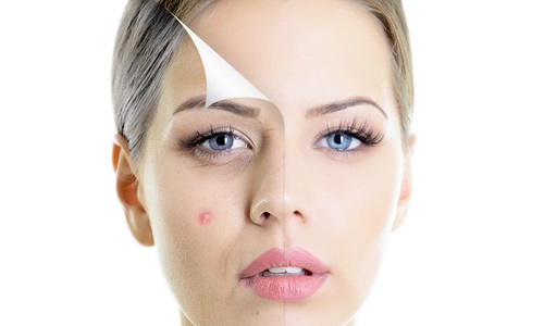 Natural Solution for Acne or Pimples problems