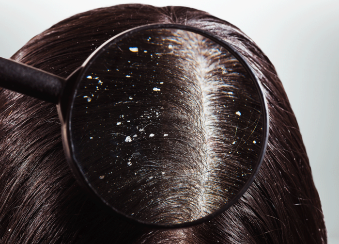 Dandruff caused by dryness