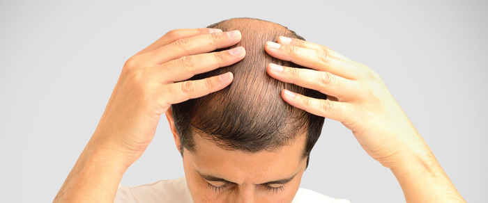 Treatment for baldness in ayurveda